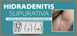 Proyecto pionero en España: Arranca en las farmacias de Aragón una campaña para detectar hidradenitis supurativa, una enfermedad de la piel desconocida
